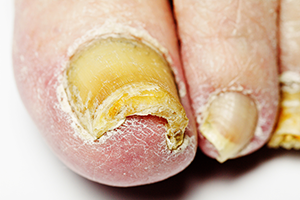 Toenail Fungus - Foot and Ankle Associates of Southwest Virginia in ...
